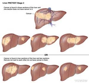 symptoms of liver cancer in the first stage picture 5
