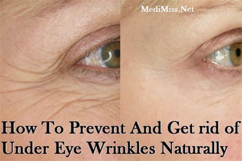 how to stop wrinkles a picture 7
