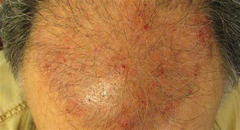 can thyroid cause red scalp picture 3