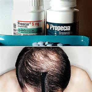 propecia for prostate health picture 14
