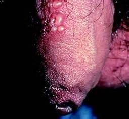 symptoms of type 2 herpes picture 5