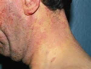 pictures of skin diseases on humans picture 1