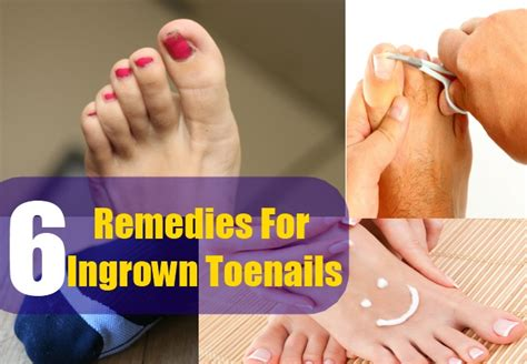 remedies for toenail fungus+ painting toenails picture 13