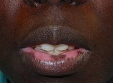 what causes purple marks on lips and when picture 6