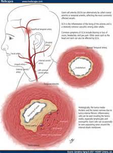 arteritis picture 2