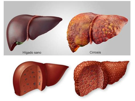 anong sintomas liver cancer picture 9