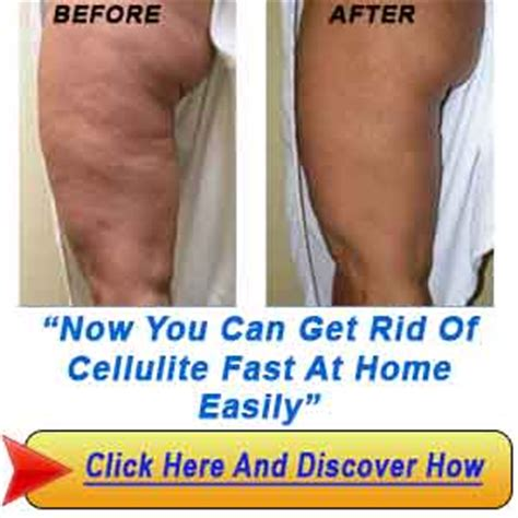 how to get rid of cellulite - your picture 3