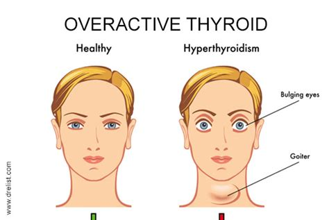 causes of a overactive thyroid picture 3