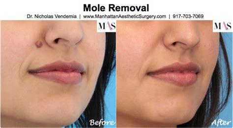 molar h remove picture 7