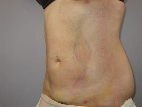 after 1 week lipo results picture 3