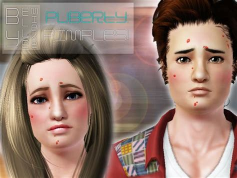 sims 3 acne skin picture 11