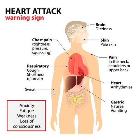 indigestion heart attacks picture 6