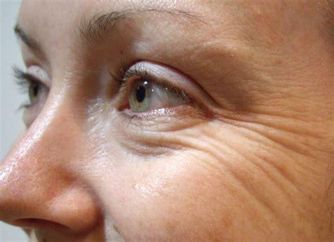 kegunaan revitol cellulite picture 21