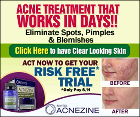 internal acne relief picture 11