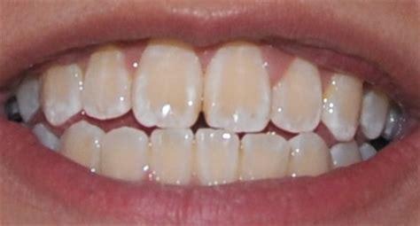 antibiotic discoloring teeth picture 19