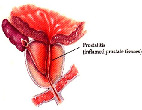 Infected prostate picture 2