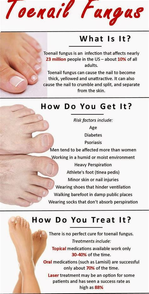 can you get pedicures with a fungus toenail picture 6