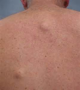 cysts in the skin picture 2