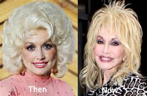 breast enhancement disasters picture 7