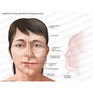 hgh and skin thickening on face picture 1