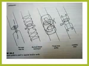 bladder repair technique picture 3