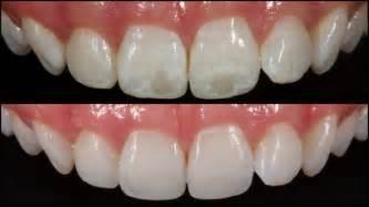 calcium spot teeth picture 10