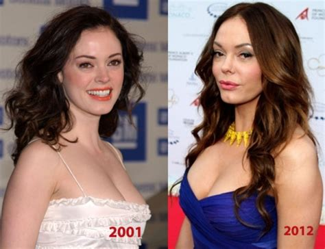 how small will breast get after weight loss picture 13