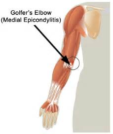causes of joint and muscle pain picture 9