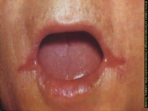 yeast infection around the lips picture 14