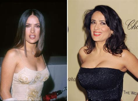 actresses and breast augmentation jobs picture 15