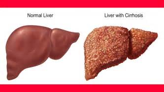 what causes sclerosis of the liver picture 11