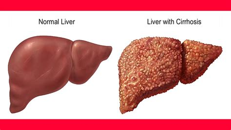 what causes sclerosis of the liver picture 5