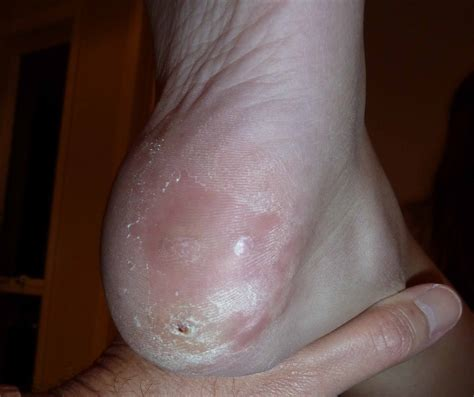a picture of a plantar warts picture 9