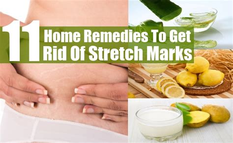 home remedies to get rid of stretch marks picture 4