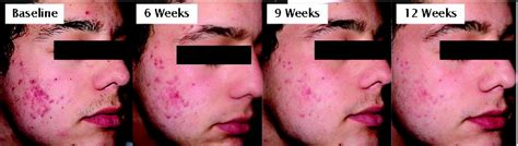 how long does acne last picture 3