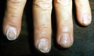 weight loss exhaustion finger selling low fevers anemia picture 9