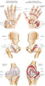 bilateral degnerative joint disease picture 2
