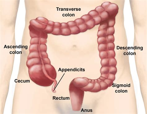 colon and liver cancer picture 9