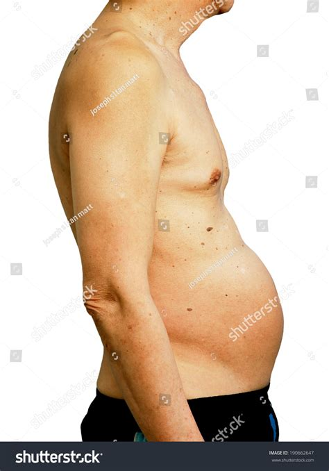 abdominal weight gain bloating picture 5