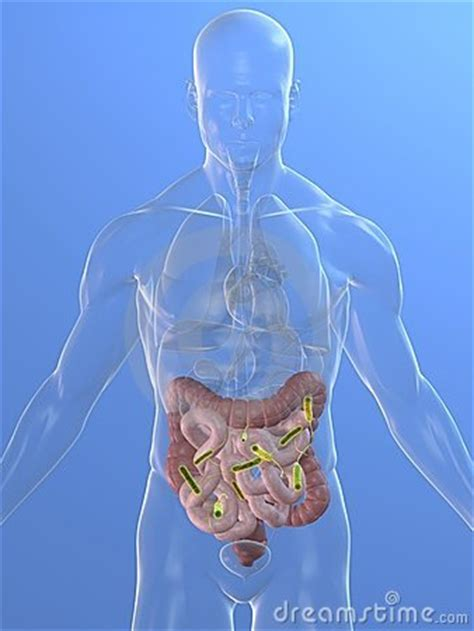 infection of colon picture 3