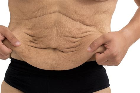 fat burner that you rub onto your skin picture 5