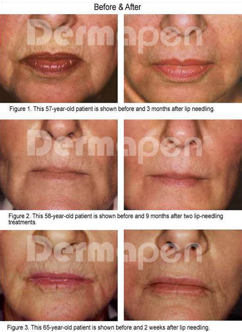 skin needling for plump lips picture 17