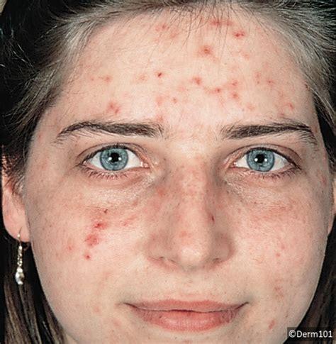 acne picture picture 10