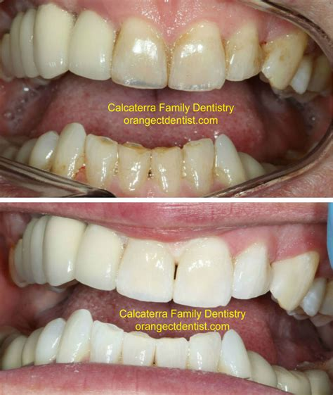 connecticut teeth whitening picture 15