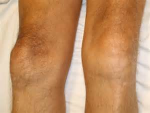 joint effusion knees picture 15