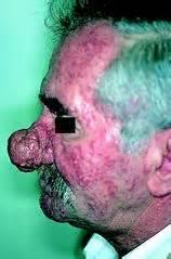 lupus acne picture 5