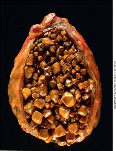 Cholesterol stone gall bladder picture 6