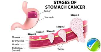 stomach colon cancer picture 1