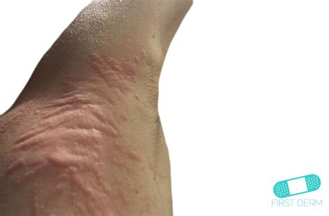 hives on els picture 3