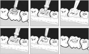 childrens teeth and veneers picture 13